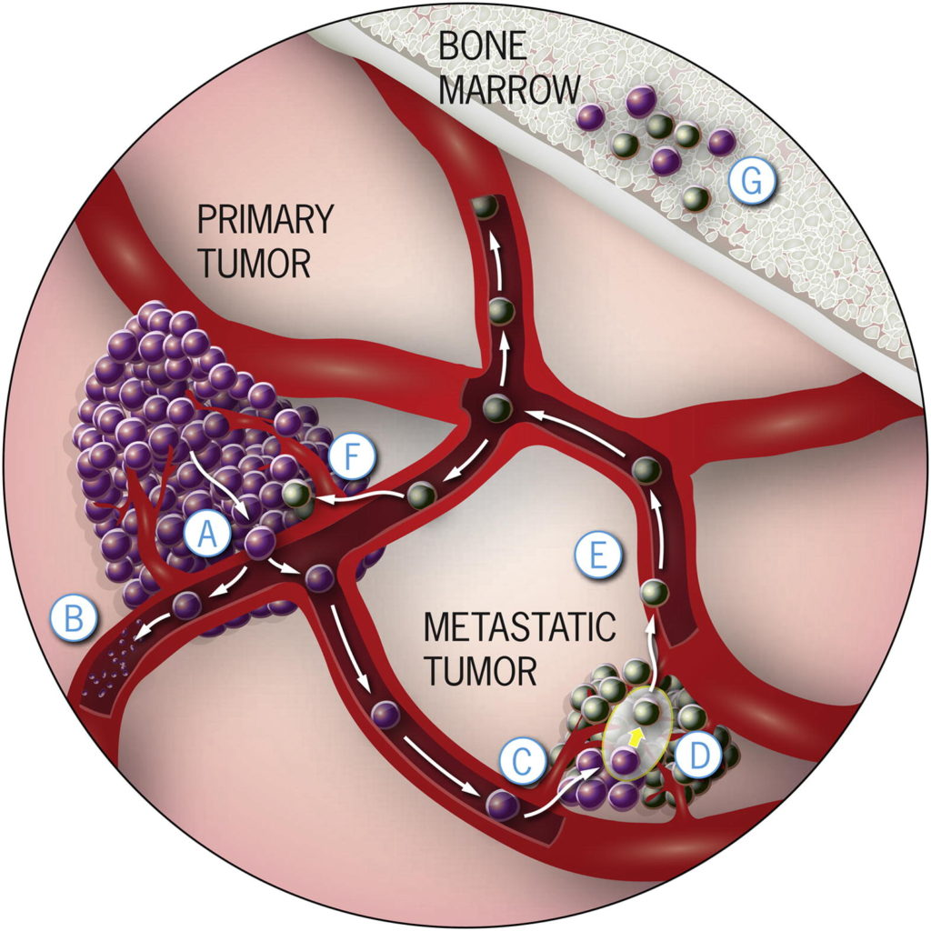 Microfluidic chip helps identify the existing tumour cells fast