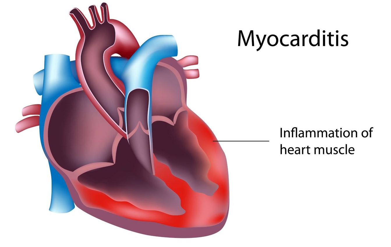 Viral myocarditis caused by Viral Infection of the hart