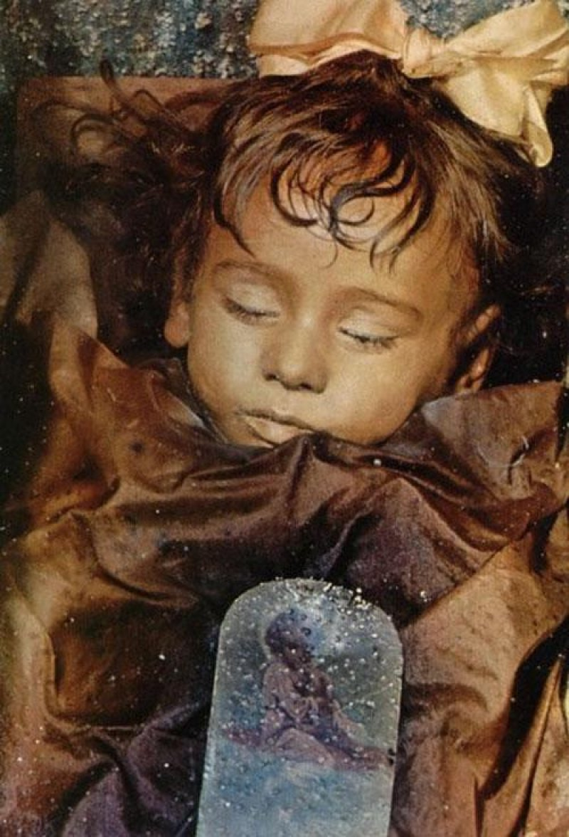 Rosalia Lombardo, One of the best preserved bodies in the world